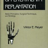 Upper Extremity Replantation